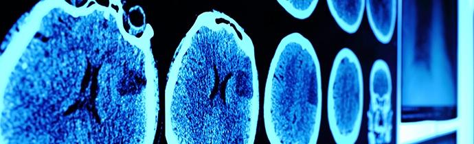 brain-scan-images.jpg